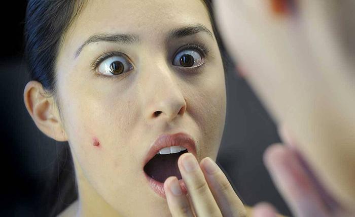 Khi người lớn bị bệnh thủy đậu rất có khả năng gây ra những biến chứng nghiêm trọng