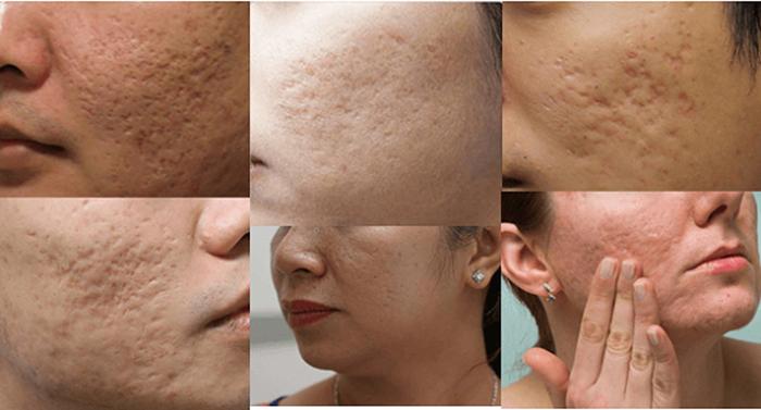 Sẹo rỗ hình thành do điều trị mụn không đúng cách