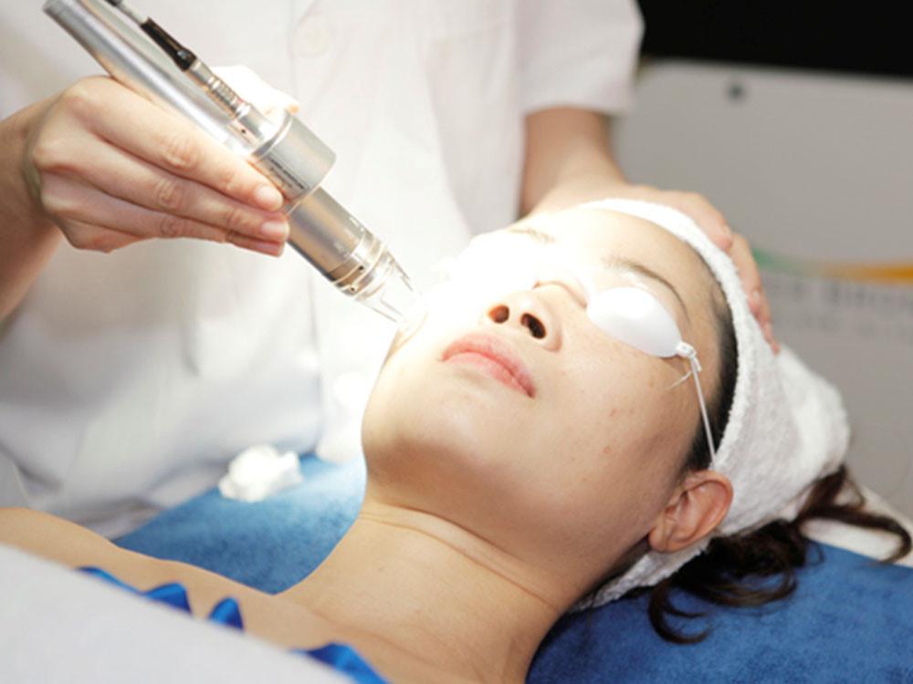 Trị sẹo bằng tia laser có mức chi phí tương đối cao