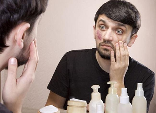 Sẹo phì đại gây mất thẩm mỹ trên gương mặt