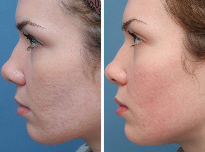 Kem trị sẹo lõm lâu năm nào luôn được các chuyên gia da liễu khuyên dùng?