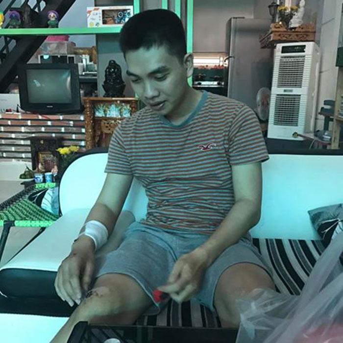 Những vết sẹo xuất hiện trên khắp cơ thể chàng trai thư sinh trẻ tuổi Nguyễn Lê Hoài Nam sau tai nạn