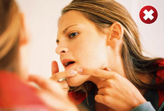 Nặn mụn sai cách rất dễ để lại sẹo thâm, sẹo rỗ