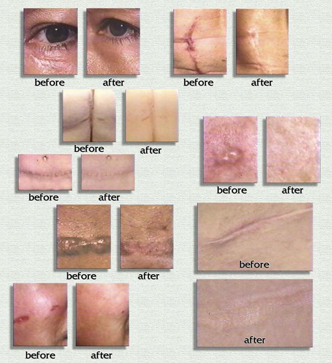 Trước và sau khi sử dụng gel trị sẹo Scar Rejuvasil