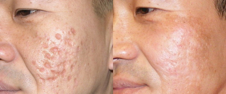 Điều trị sẹo lõm lâu năm- đâu là phương pháp dành cho bạn?