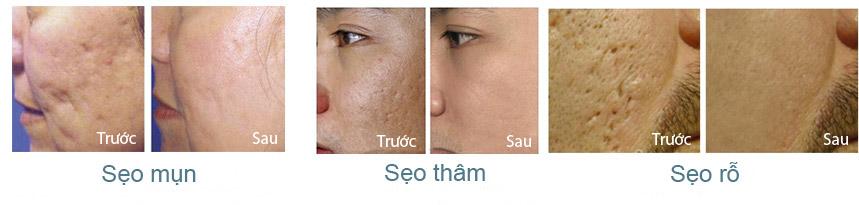 Kết quả điều trị sẹo của chính những khách hàng đã sử dụng