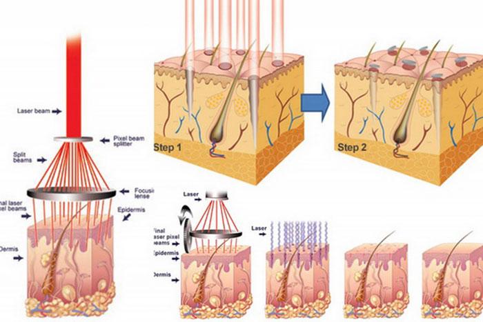 Cơ chế hình thành và làm lành sẹo lõm
