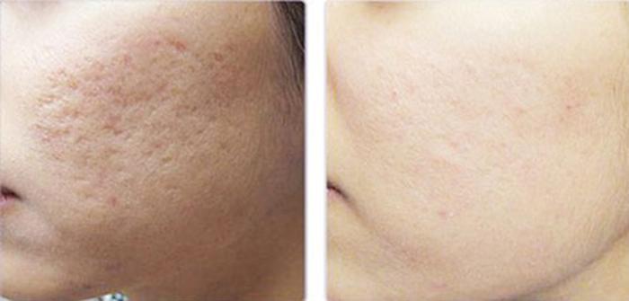 Kết quả sau 3 tháng sử dụng kem trị sẹo Esthetique của bạn Hùng
