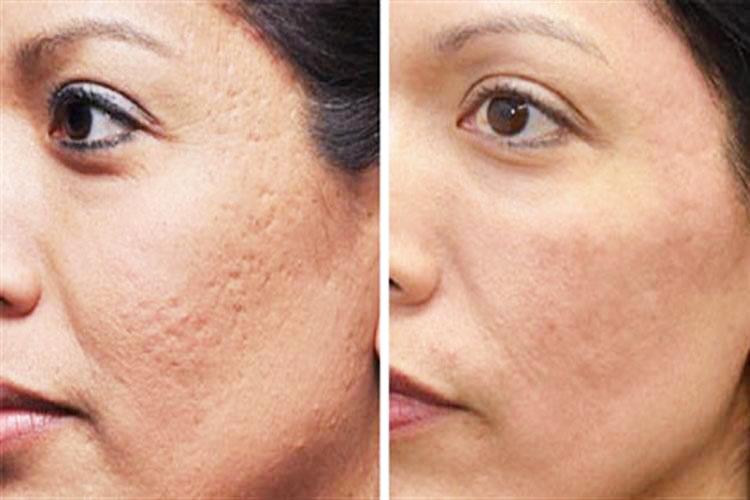 Mang đến hiệu quả cải thiện sẹo rỗ nhanh chóng