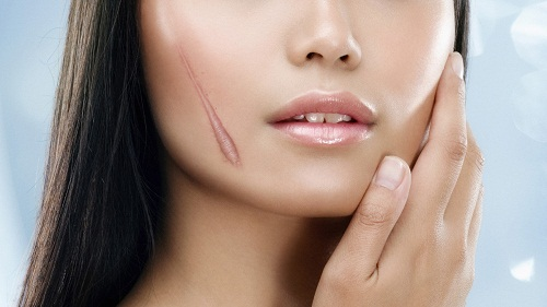 Hành tây không thể chữa khỏi các vết sẹo lồi lâu năm