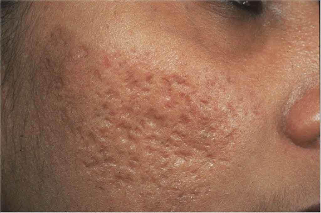 Trường hợp sẹo rỗ quá nặng cần sử dụng các sản phẩm đặc trị